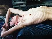 skinnybones04.jpg