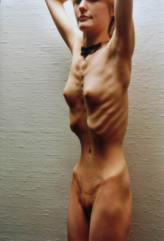 начальник эротика худая что кости торчат виду возможно это